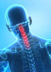 neck-pain-cervical-spine